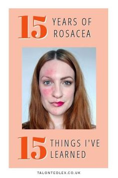 The 15 things I've learned in 15 years of rosacea. Rosacea advice and rosacea tips. Everything I know about rosacea. Skin Care Regimen, Skin Care Tips, Best Beauty Tips, Beauty Hacks, Dealing With Stress, Anti Aging Skin Care, 15 Years, Good Skin, 15 Anos