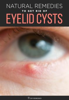 How To Treat Eyelid Infection Naturally