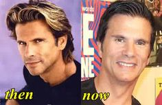 Lorenzo-Lamas-Plastic-Surgery-Before-and-After