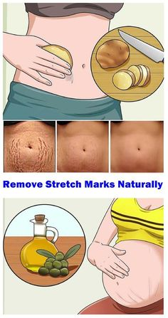 In this article, we will present you natural methods that will help you remove your stretch marks fast in just a couple of weeks. Natural remedies that will help you remove stretch marks: Cucumbers They are various nutrients and skin lightening compounds Stretch Mark Remedies, Stretch Mark Removal, Face Care, Body Care, Stretch Marks On Thighs, How To Get Rid Of Stretch Marks, Pele Natural, Dry Skin Remedies, Natural Remedies