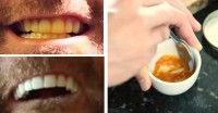 Dieser Mann zeigt einen lächerlich einfachen Trick zum Zähneaufhellen, mit einer Paste und einer geheimen Zutat.