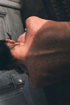 spine + freckles