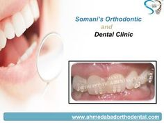 Braces are the devices which are used in orthodontic treatment. A perfect set of teeth is every ones dream. Every one desires a beautiful smile. Perfectly arranged teeth functions best and last longer in mouth. Somani's Orthodontic and Dental Clinic is Clinic for braces in Ahmedabad. For more information visit our clinic website - www.ahmedabadorthodental.com and contact to us @  07940057100.