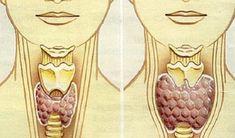 Как привести в порядок щитовидку? Смешайте по одному стакану молотой гречневой крупы, пропущенных через мясорубку грецких орехов и меда в эмалированной (абсолютно чистой) посуде и переложите в стеклянную банку. Подробнее: Гречку нужно очень тщательно перемолоть в кофемолке до однородного состояни