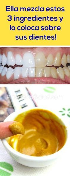 Aplica estos 3 ingredrientes sobre tus dientes, si sufres de dolor de muelas severo, irritación de las encías, dientes sensibles o fragiles.