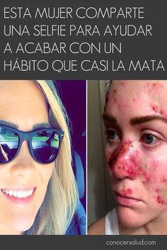Esta mujer comparte una selfie para ayudar a acabar con un hábito que casi la mata #salud