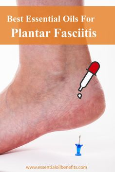 Want to know what plantar fasciitis is and what causes it? FInd out the best treatment methods incuding essential oils and essential oil blends to treat it. Essential Oils For Pain, Essential Oil Uses, Doterra Essential Oils, Young Living Essential Oils, Remedies For Plantar Fasciitis, Healing Plantar Fasciitis, Plantar Fasciitis Shoes, Essential Oil Plantar Fasciitis, Treatment For Plantar Fasciitis