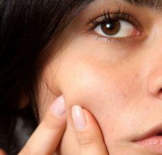 Aknenarben Tipps