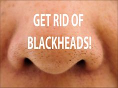 Blackheads are a real problem for those who want a clean and flawless complexion, like I do. And I've tried all sorts of remedies and moisturizers but still with no results. Then I found this remedy on internet and used constantly, at least 4 times a week it worked pretty good for me. And it's …