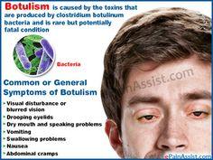 Common or General Symptoms of Botulism
