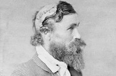 Robert McGee survived a scalping. Little Turlle the chief pulled out his knife and went to work on the back of McGee's head, hacking off 400 square centimeters (64 sq in) of skin. As the chief walked off with his trophy, his cronies stabbed McGee with a collection of pointy knives and spears. McGee was conscious the entire time.