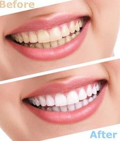 How to Get Healthy White Teeth Naturally