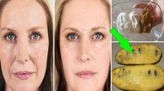 فاكهة حيرت الأطباء تخلصك من تجاعيد الوجه كأنك في 21 سنة من عمرك - YouTube