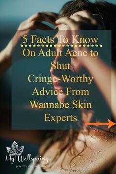 These 5 Adult Acne facts gonna broaden your perspective to deal with skin problems as well as cringe-worthy and unsolicited advice from people. Take control of your skin care regime by knowing authentic and scientific basis of Adult Acne. Unsolicited Advice, Skin Problems, Cringe, Skin Care Tips, Your Skin, Health And Beauty, Something To Do, Healthy Lifestyle