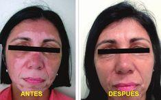 Remedio casero y efectivo para eliminar el Vitiligo - Info Noticias