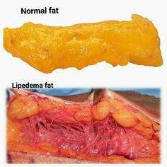Journey with lipedema : May 2015