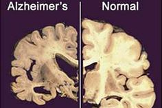 Beta blockers may reduce Alzheimer's risk, study finds  Beta blocker drugs for hypertension may protect the #brain from effects of #Alzheimer's disease. - LA Times Article