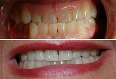 Invisalign is a braces alternative meant to straighten crooked teeth