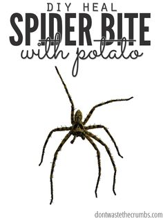One families personal story of how they healed a spider bite with a potato. Using just a potato and medical tape, they were able to successfully treat and heal a brown recluse spider bite. :: Dontwastethecrumbs.com
