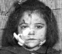 Mary Weaver injured during the Halifax explosion. Halifax Explosion, Explosions, Nova Scotia, Mary, Canada, People, Mont Blanc, People Illustration