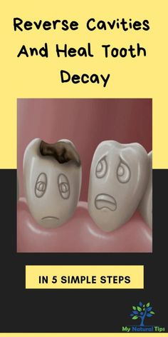 Reverse Cavities, How To Prevent Cavities, Causes Of Mouth Ulcers, Receding Gums, Oral Surgery, Best Oral, Oral Hygiene, Oral Health, Health Care