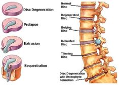Major Back Pain Relief In Just 16 Minutes? Degenerative Disc Disease, Spine Surgery, Spine Health, Body Anatomy, Brain Anatomy, Back Pain Exercises, Human Anatomy And Physiology, Medical Anatomy, Medical Facts