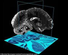 Print3d World: Neurocientíficos crean un mapa 3D de un cerebro humano completo http://www.print3dworld.es/2013/07/neurocientificos-crean-mapa-3d-de-un-cerebro-humano-completo.html