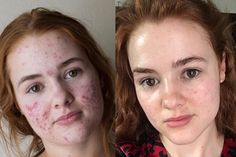 This Womans Accutane Transformation Photos Went Viral Before and After Acne Photos Allure Before And After Acne, Accutane Before And After, Selfies, Aloe Vera Visage, Cystic Acne Remedies, Overnight Acne Remedies, Diy Beauté, Pigmentation, Acne Spot Treatment