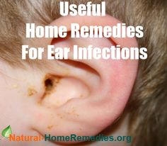 Useful Home Remedies For Ear Infections