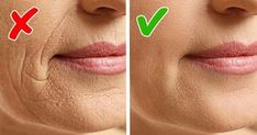 Cut 10 years from your age with this homemade anti aging face mask Face Mask For Blackheads, Acne Face Mask, Anti Aging Face Mask, Green Tea Face, Makeup Jobs, How To Apply Lipstick, Homemade Face Masks, How To Look Better, Skin Care