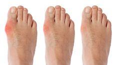 Joanete é uma inflamação óssea no dedão do pé e atinge principalmente mulheres com mais 30 anos.A genética é o principal motivo do desenvolvimento de joanetes.