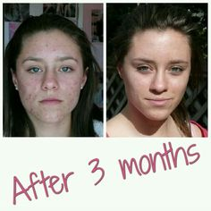 Results, results, ... I love when things work :) This is Nicole, she had problematic acne skin, but bye bye acne. Send me a private message, maybe I can help you with your problematic skin ;)  #acnesolution  #clearskin Acne Solutions, Acne Skin, Bye Bye, Clear Skin, I Can, Messages, My Love, Natural, Health
