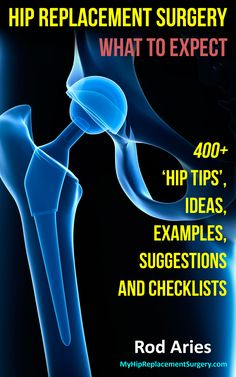 Chapter 2 – Is Hip Surgery Really That Quick And Easy? A Brief Summary Of Hip Replacement Surgery Hip Replacement Exercises, Hip Replacement Recovery, Joint Replacement, Hip Precautions, Hip Problems, Hip Dysplasia, Operation, Surgery Recovery, Hip Pain