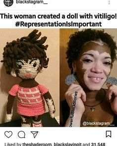 She is beautiful, vitiligo is beautiful, and that doll she made to represent herself and people like her is beautiful. My Black Is Beautiful, Beautiful People, We Are The World, Black Girls Rock, Black Power, Black Girl Magic, Black History, Equality, Jesus Reigns