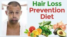 A Diet Guide To Reverse Male Pattern Baldness