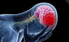 23 Unbelievable Proven Benefits Of Cannabis Recovering From A Stroke, Types Of Strokes, Brain System, Stroke Recovery, Healthy Cholesterol Levels, Normal Blood Pressure, Cooking With Olive Oil, Health Problems