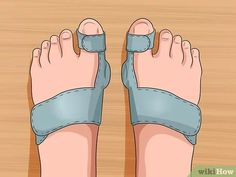 How to Get Rid of Bunions. A bunion is a bony lump that forms at the base joint in the big toe. Bunions form when tight or high-heeled shoes, an injury, or a person's inherited bone structure result in the big toe being pushed toward the. Bunion Exercises, Bunion Remedies, Get Rid Of Bunions, Bunion Pads, Traumatic Brain Injury, Foot Pain, Knee Pain, Feet Care, Health And Wellbeing