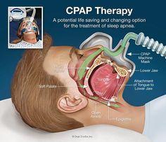 Mi viejo maletin: CPAP (Presión continua positiva de las vías aéreas...