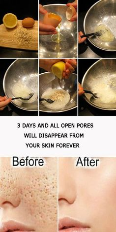 3 days and all open pores will disappear from your skin forever - Healthy Tips World Natural Beauty Tips, Health And Beauty Tips, Natural Skin Care, Natural Beauty Remedies, Natural Face, Skin Tips, Skin Care Tips, Beauty Care, Beauty Skin