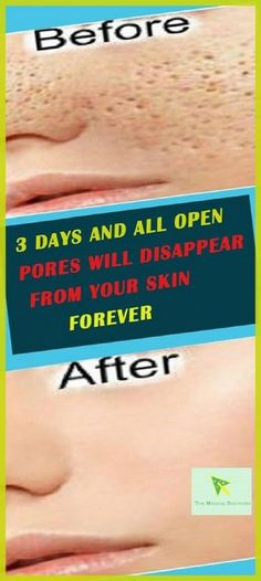 We all have millions of skin pores on our skin but they are not visible with naked eye but as your get older or sometimes because of other factors also pores become visible on your skin and looks really bad but they are not permanent if you want you can shrink them.