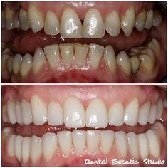 Kombinacija zubnih ljuskica i navlaka u CADCAM tehnici. http://www.ordinacijaknego.hr/ljuskice-i-laminati.html
