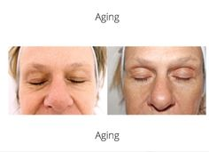 After 6 facial infusions to heal sun-damage, deep lines are softened.  Wrinkles are sun oxidized scars,  heal your remarkable dermis and watch your visage dramatically reveal you smooth and beautiful.   As above so below healthy tissue evolves into a wrinkle free fabulous you ❤️ Stem Cells, Healthy Skin, Your Skin, Anti Aging, Facial, Smooth, Deep, Sun, Watch