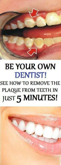 How To Remove Dental Plaque In 5 Minutes Naturally, Without Going To The Dentist… - Todo Sobre La Salud Bucal 2020 Healthy Teeth, Healthy Tips, Healthy Women, Autogenic Training, Organic Toothpaste, White Teeth, Oral Health, Dental Health, Teeth Health