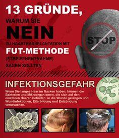 FUT Haarverpflanzung Haartransplantation Streifenmethode Nachher Fotos Ergebnisse Donor zone 3/6