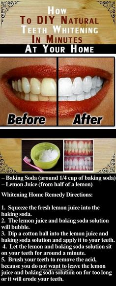 DIY Natural Teeth Whitening in Minutes At Your Home beauty diy diy ideas how to tutorial remedies remedy life hacks life hack beauty tips money saving all natural teeth whitening