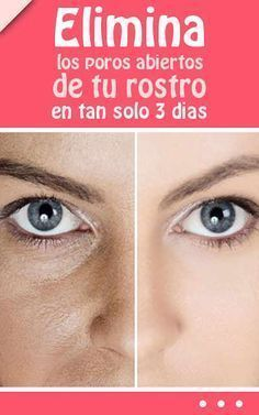 Eliminate the open pores of your face in just 3 days Beauty Care, Diy Beauty, Beauty Skin, Health And Beauty, Beauty Hacks, Beauty Ideas, Beauty Tips For Face, Natural Beauty Tips, Beauty Secrets