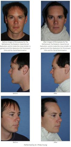 Before & After Images of Rhinoplasty for Tip Refinement, Tip Rotation, Nasal Dorsal Reduction, and to make the nose smaller in general and Chin Reduction for Prominent Chin and for Facial Feminization
