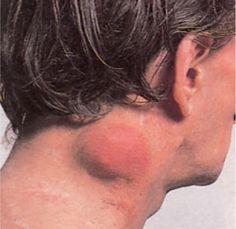 Non-Hodgkin's Lymphoma – Non-Hodgkin Lymphoma