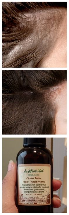 GNew Hair Therapy | Treatments - Men's Hair | Just Nutritive