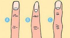 Ano. Každý člověk je jiný. Každý člověk má jiné prsty, někdo je má více zakřivené, někdo zase více rovné, každý to má prostě tak jak se s tím narodil. Ale podle typu se rozdělují ukazováčky do základních třech skupin, které by měli svou podobu mít nějak jak vás ukazováček. Podívejte se jak na tom js